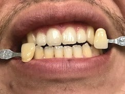 before tooth whitening